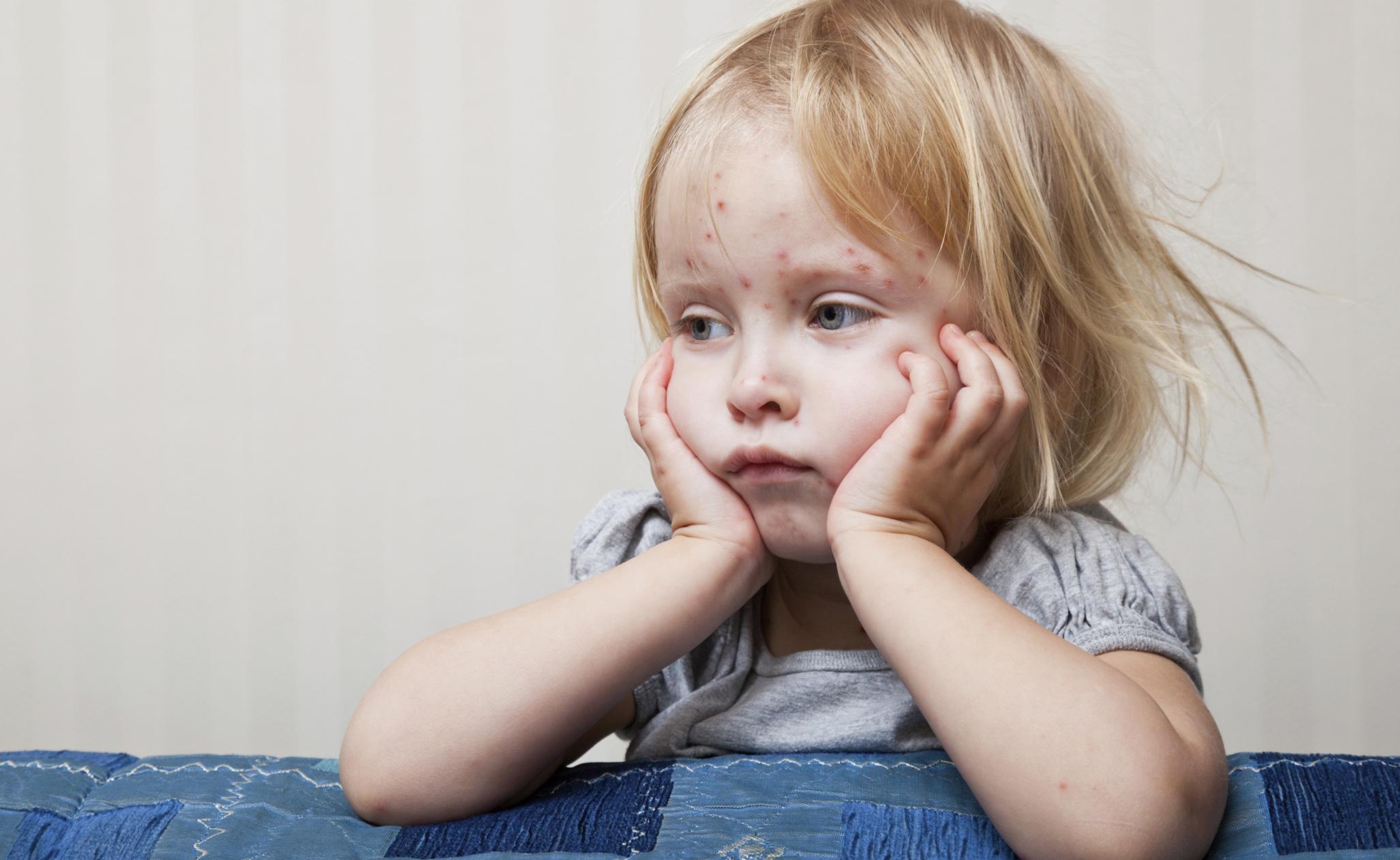 Morbillo: Problema Attuale per Fuga dai Vaccini