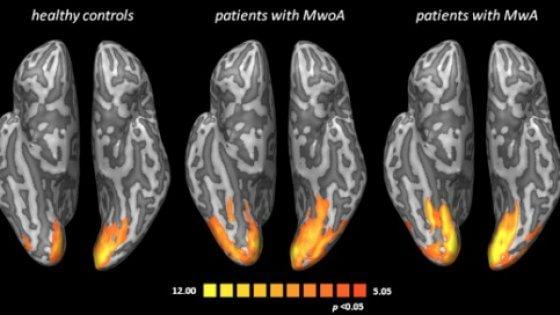 Mal di testa: studiosi italiani immortalano effetti sul cervello