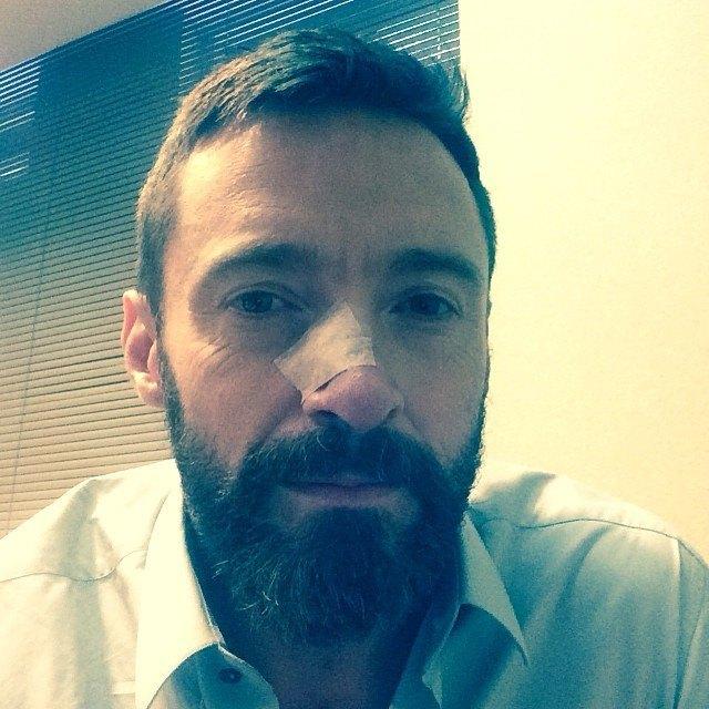 Hugh Jackman Operato al Naso per la Quinta Volta: Immagine sui Social