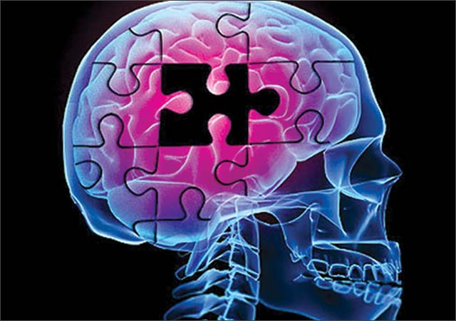 Alzheimer: capsula per pulire cervello