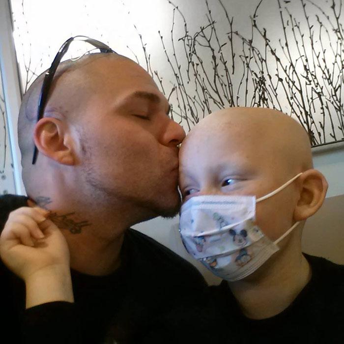 Josh, padre che si tatua cicatrice in testa per sembrare il figlio
