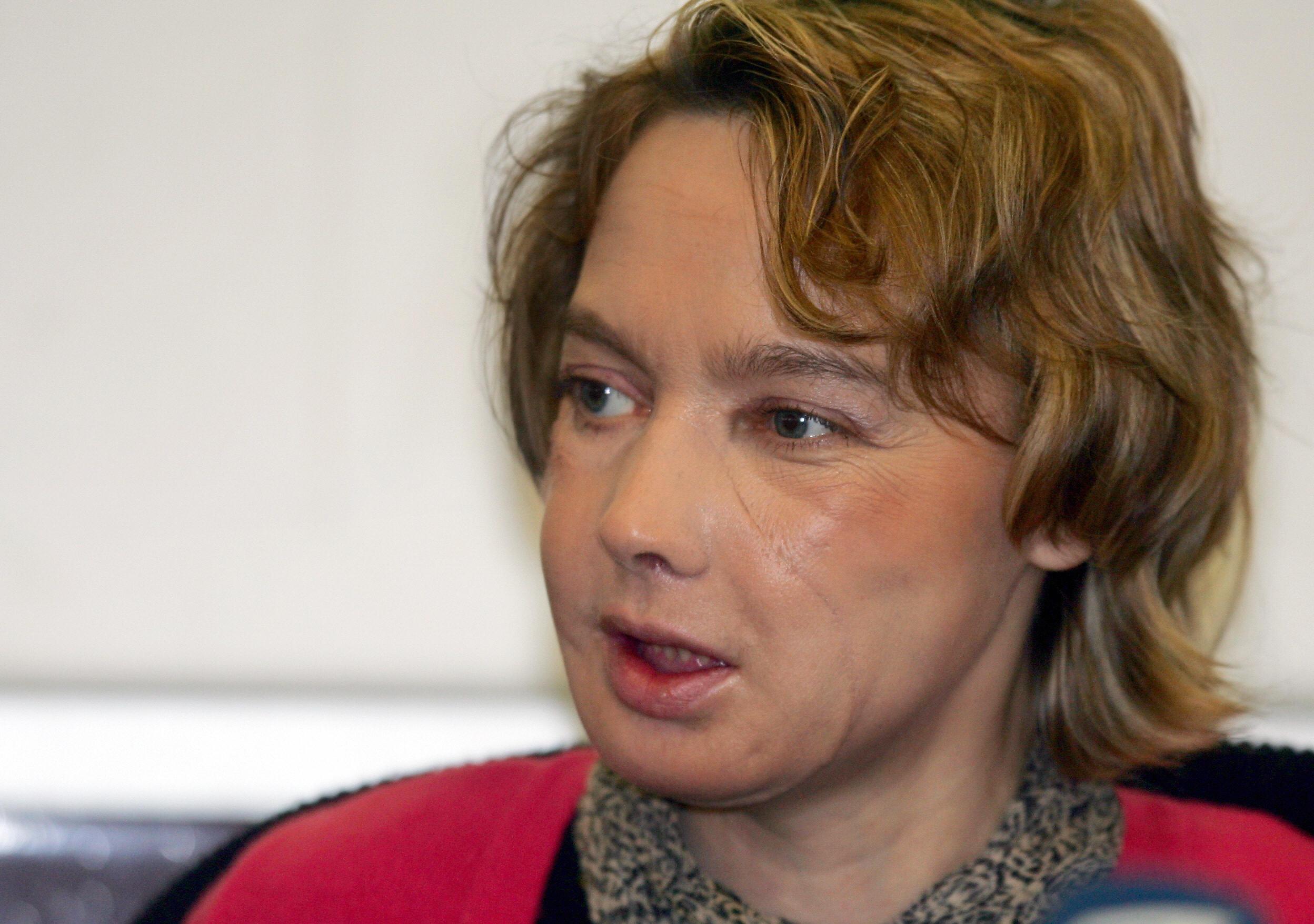 Isabelle Dinoire è morta: ricevette nuovo volto nel 2005