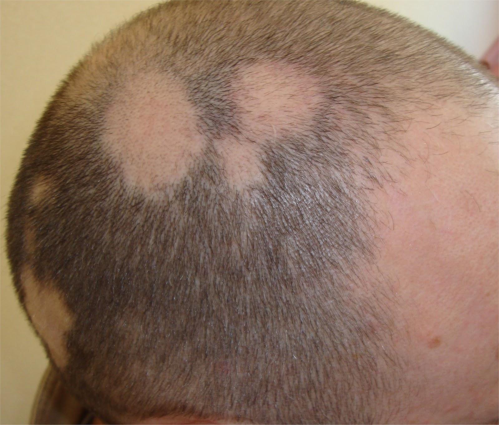 Alopecia areata cura 2016