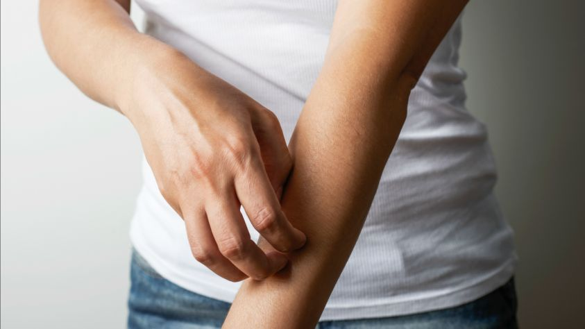 La psoriasi viene spesso curata in modo inadeguato