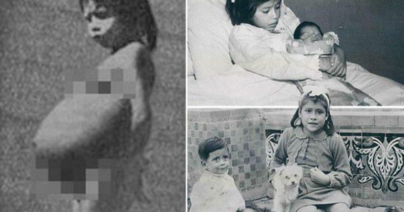 Madre più giovane del pianeta: Lina Medina partorì a 5 anni