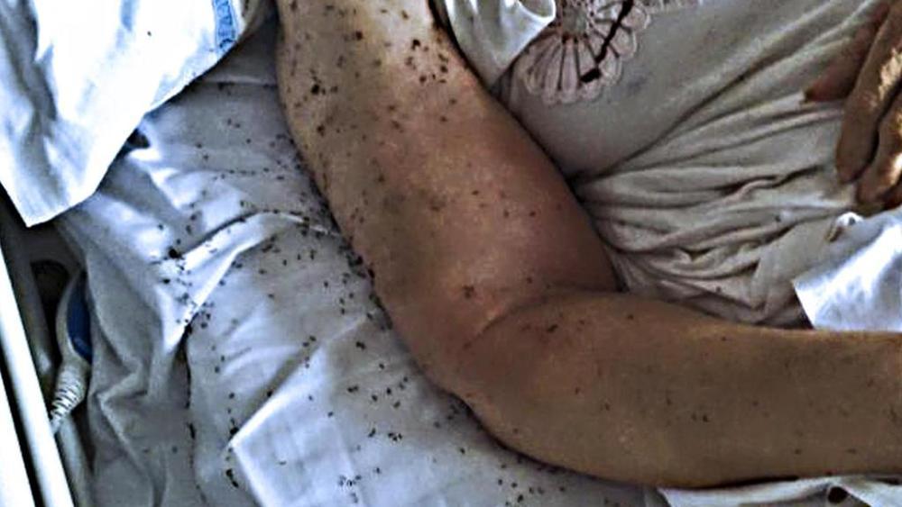 Napoli, paziente su letto con formiche: Lorenzin indignata