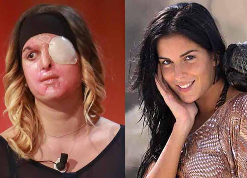 Gessica Notaro rischia la cecità