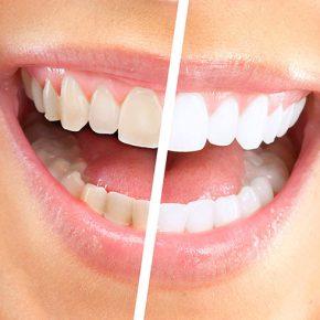 Boom dello sbiancamento dei denti in Italia