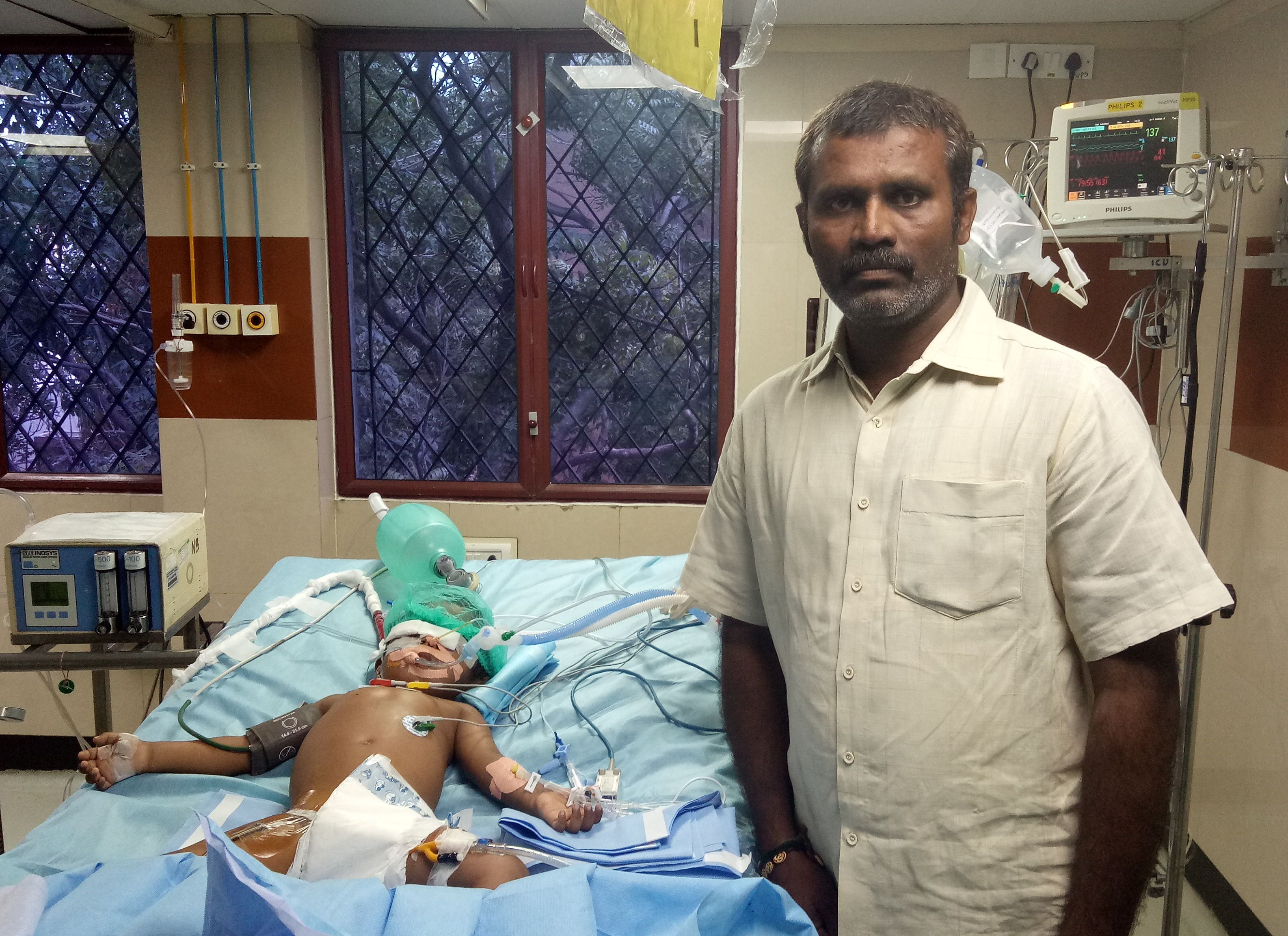 India, vernice nella bottiglia: bimbo beve e rischia morte