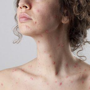 Morbillo, ostetrica Senigallia priva di vaccinazione