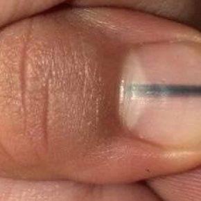 Striscia scura sull'unghia: la scoperta di un melanoma