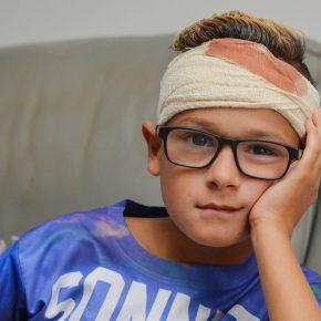 Bimbo autistico bullizzato crudelmente: pezzo di legno nel cranio