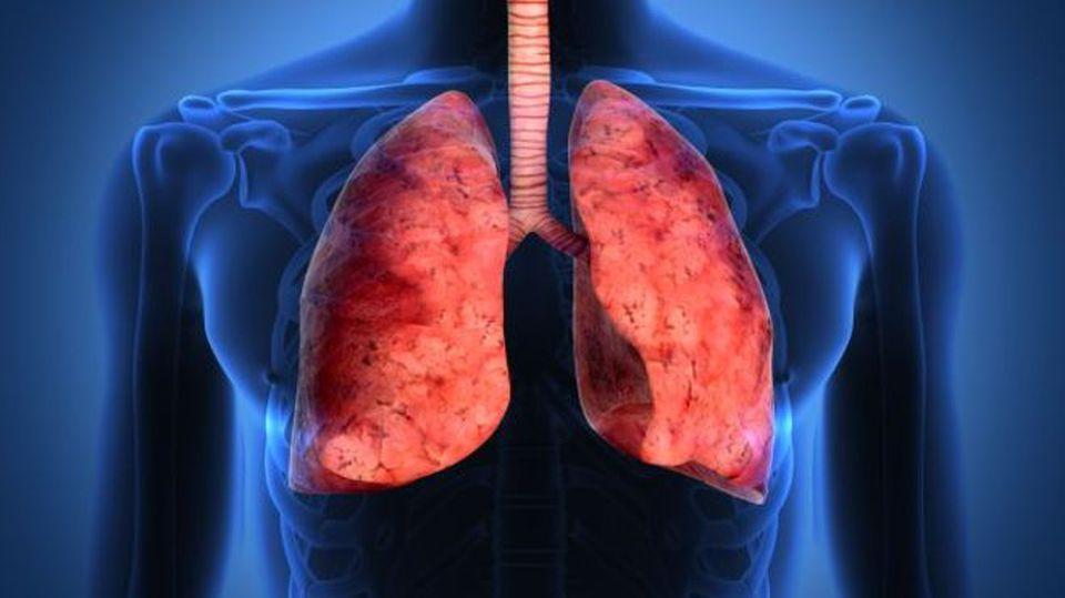 Cancro al polmone: ecco il nuovo e portentoso farmaco