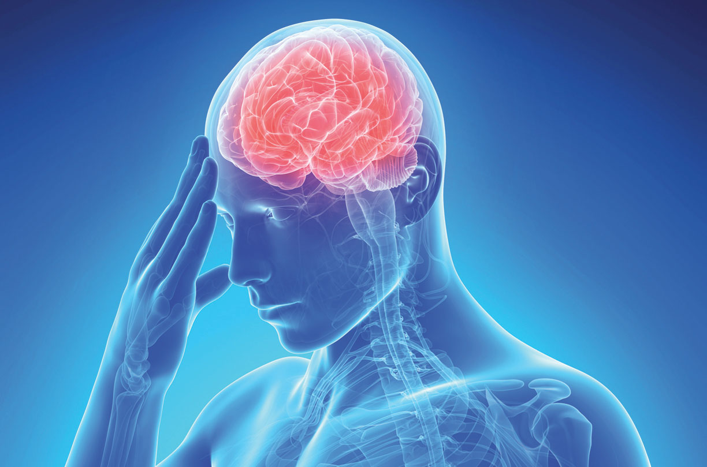 Ictus cerebrale uccide 17 milioni di persone al mondo