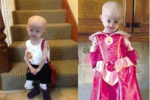 Lucy Parke Irlanda malattia rara Progeria