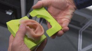 Orecchio-microtia-stampa-3D