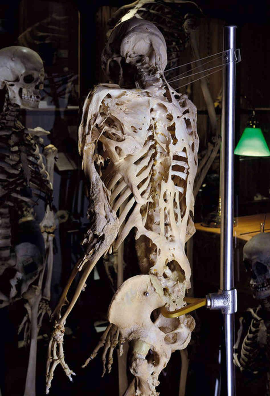 ossa-sindrome-uomo-pietra-fop
