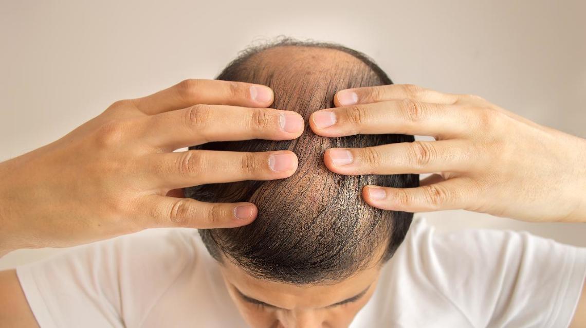 Caduta capelli, la speranza da una sostanza