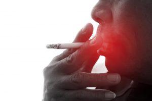 Come prevenire il tumore del cavo orale