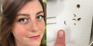 Scarafaggio nell'orecchio: la scoperta di Lucie