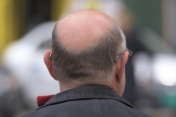 Cura per la calvizie, un profumo fa ricrescere i capelli