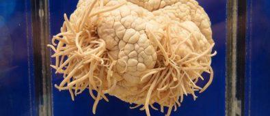 Ameba mangia-cervello: morto 29enne negli Stati Uniti