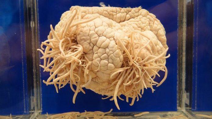 Ameba mangia-cervello in piscina, Fabrizio muore a 29 anni