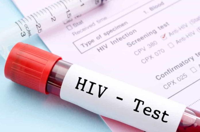 test-hiv-minorenni-senza-consenso-genitori-lotta-aids