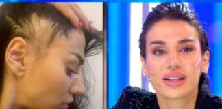 """Patrizia Bonetti in lacrime dopo l'aggressione: """"Adesso ho una protesi"""""""